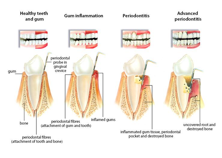 classification of periodontal disease pdf